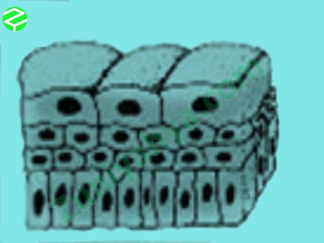 Epitel Transisi
